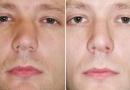 Выпрямление перегородки носа: как проходит операция