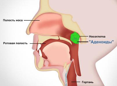 аденоиды в носу у взрослых фото