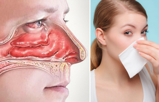 Снять отечность носа в домашних условиях