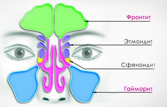 Симптомы фронтита и гайморита