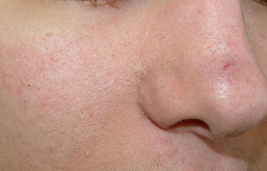Фурункул в носу - лечение в домашних условиях