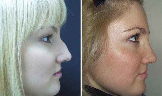 Варнава до пластики носа и после фото