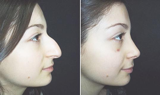 Как сделать если нос поменьше