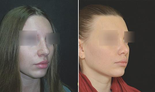 Пластика носа без операции видео