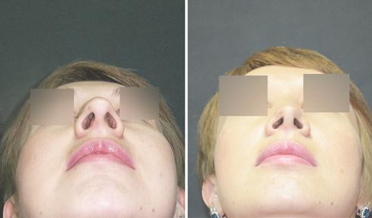 Ринопластика исправление носа картошкой кончика и