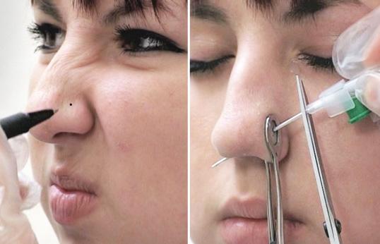 Болят пломбированные зубы: стоматология и лечение зубов